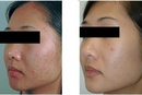 Tp. Hồ Chí Minh: Điều Trị Sẹo Rỗ Thành Công đến 80% RSCL1701248