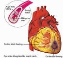 Tp. Hà Nội: Điều trị bệnh tim mạch hoàn hảo tại PIYAVATE tại Thái Lan CL1166250P6