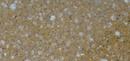 Tp. Hồ Chí Minh: Tìm nhà phân phối đá nhân tạo cao cấp CL1126404P7
