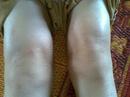 Tp. Hà Nội: AyuRtis Thuốc chữa bệnh viêm đa khớp CL1166250P6