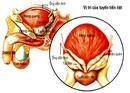 Tp. Hà Nội: Bệnh Viêm Tuyến Tiền Liệt và thuốc chữa CL1166250P6