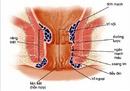 Tp. Hồ Chí Minh: Bệnh trĩ và Thuốc chữa bệnh trĩ hiệu quả Proctol RSCL1682122