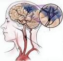 Tp. Hà Nội: Bệnh Tai biến mạch máu não chuẩn đoán và điều trị CL1161022