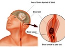 Tp. Hồ Chí Minh: Cấp cứu và điều trị Bệnh tai biến mạch máu não CL1161022