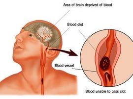 Cấp cứu và điều trị Bệnh tai biến mạch máu não