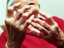 Tp. Hồ Chí Minh: Bệnh viêm khớp dạng thấp - chuẩn đoán và điều trị CL1161022