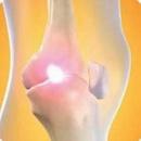 Tp. Hồ Chí Minh: Bệnh viêm đa khớp - Biểu hiên bệnh sinh và cách điều trị CL1161531