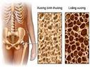 Tp. Hồ Chí Minh: LUXY Cal-D Thuốc chữa bệnh loãng xương CL1161040