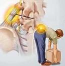 Tp. Hà Nội: Ðau thần kinh tọa và thuốc điều trị CL1161022