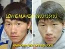 Tp. Hồ Chí Minh: Kem trị mụn và vết thâm dùng cho nam và nữ cam đoan hiệu quả RSCL1682122