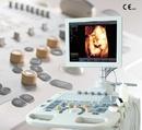 Tp. Hà Nội: Máy siêu âm Doppler màu Chison iVis 30 CL1319213