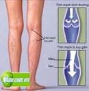 Tp. Hồ Chí Minh: Suy giãn tĩnh mạch chân | Chữa suy giãn tĩnh mạch chân hiệu quả CL1252006