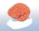 Tp. Hà Nội: Chữa bệnh đau đầu do thiếu máu não CL1550247