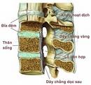 Tp. Hà Nội: Thực tại bệnh đau lưng ở trẻ nhỏ và thanh niên CL1683411