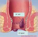 Tp. Hồ Chí Minh: Cách điều trị bệnh trĩ ngoại hiệu quả CL1690355