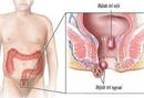 Tp. Hồ Chí Minh: Khi mắc bệnh trĩ nên ăn gì nhanh khỏi CL1123991