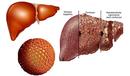 Tp. Hồ Chí Minh: Cách nhận biết các bệnh về gan và biểu hiện của bệnh CL1697319P5