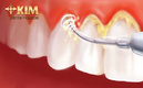 Tp. Hà Nội: Cao răng là gì, cao răng hình thành từ đâu?- Bác sỹ nha khoa giải đáp CL1697319P4