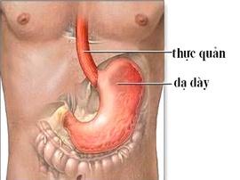 Các bài thuốc đông - tây y chữa trào ngược dạ dày