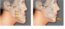 Tp. Hồ Chí Minh: kỹ thuật chữa hô móm không cần niềng răng đọc ngay CL1700521