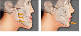 kỹ thuật chữa hô móm không cần niềng răng đọc ngay